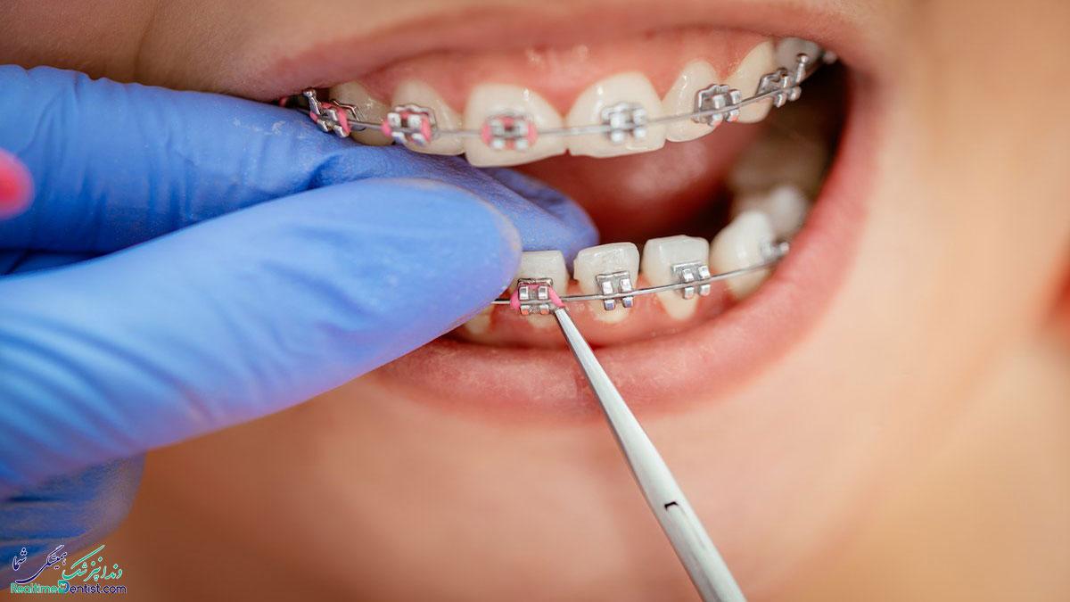 بریس دندان