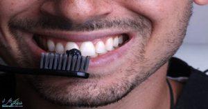 6 راه کاملا طبیعی برای سفید کردن دندان ها | راه های سفید کردن دندان در خانه