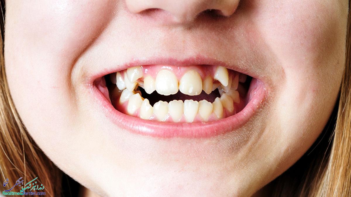 علت کج شدن دندان ها