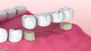 بریج دندان یا پل دندانی چیست و چه کاربردی دارد؟
