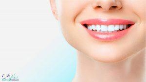 تاج دندان ، کامپوزیت دندان و لمینت دندان چه تفاوتیهایی با هم دارند؟