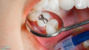 پر کردن دندان چیست و چه وقت دندان باید پر شود؟