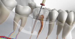 عصب کشی دندان چیست و چرا برخی از افراد نیاز به عصب کشی دندان دارند؟