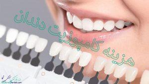 هزینه کامپوزیت دندان در سال 99 چقدر است ؟