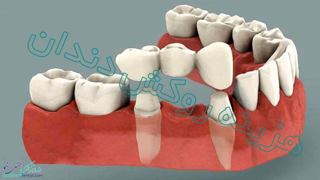 هزینه روکش دندان