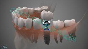 هزینه ایمپلنت دندان در سال 99 چقدر است ؟
