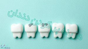 هزینه پر کردن دندان در سال 99