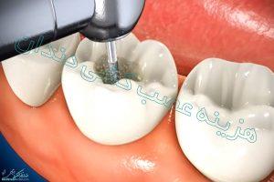 هزینه عصب کشی دندن در سال 99 چقدر است؟