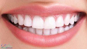 فیسینگ دندان در بوشهر + بهترین دندانپزشک متخصص فیسینگ دندان در بوشهر