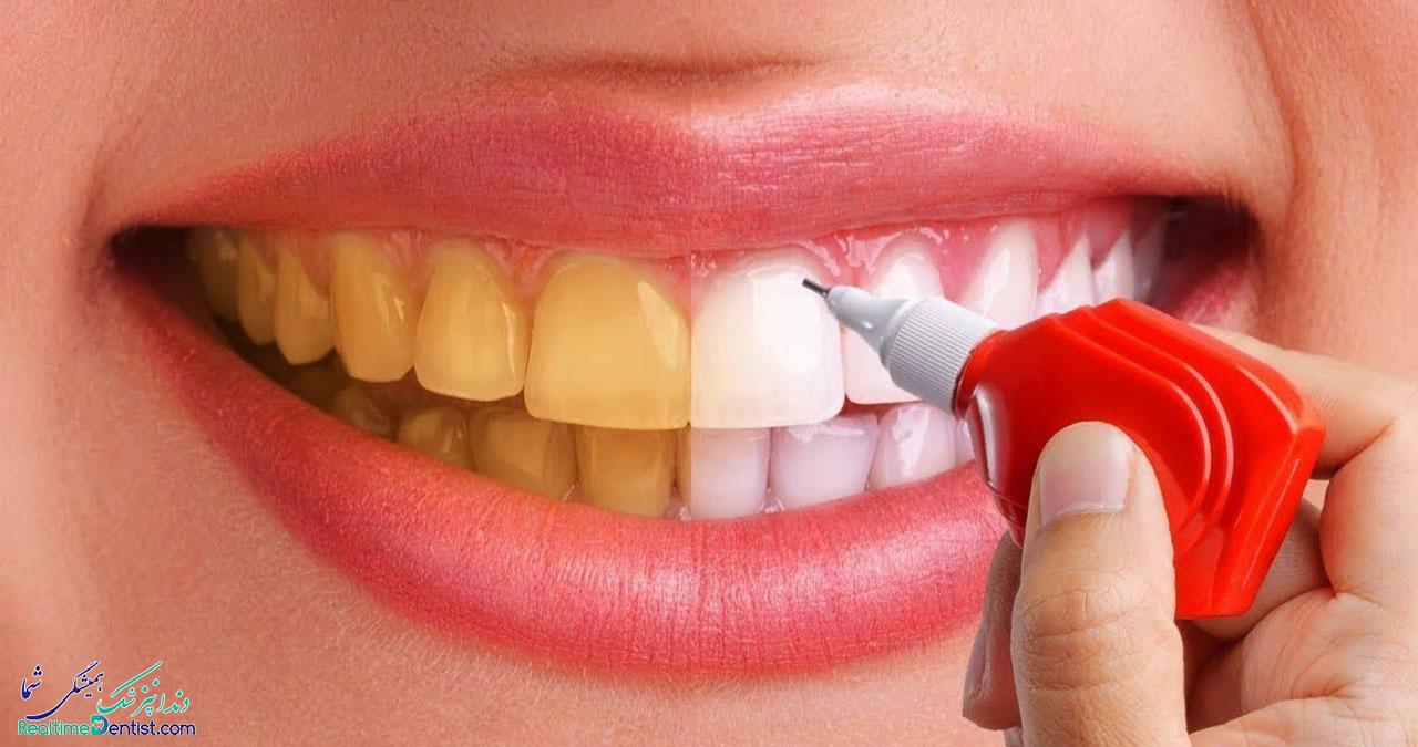 بلیچینگ دندان در بوشهر