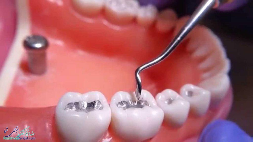 متخصص ترمیم دندان در بوشهر
