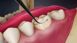 جرم گیری دندان در بوشهر | آدرس و شماره تماس