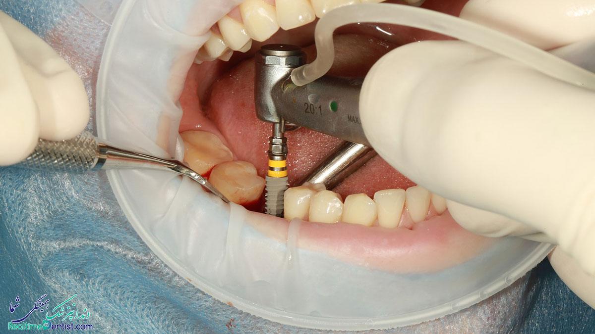 ایمپلنت دندان در بوشهر