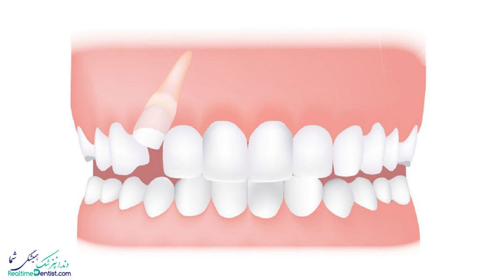 جراحی دندان نهفته در بوشهر