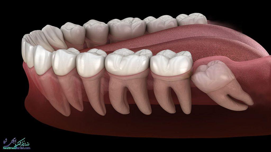 جراحی دندان عقل در بوشهر