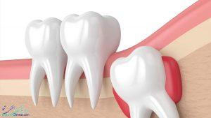جراحی دندان عقل در بوشهر | کشیدن دندان عقل بوشهر