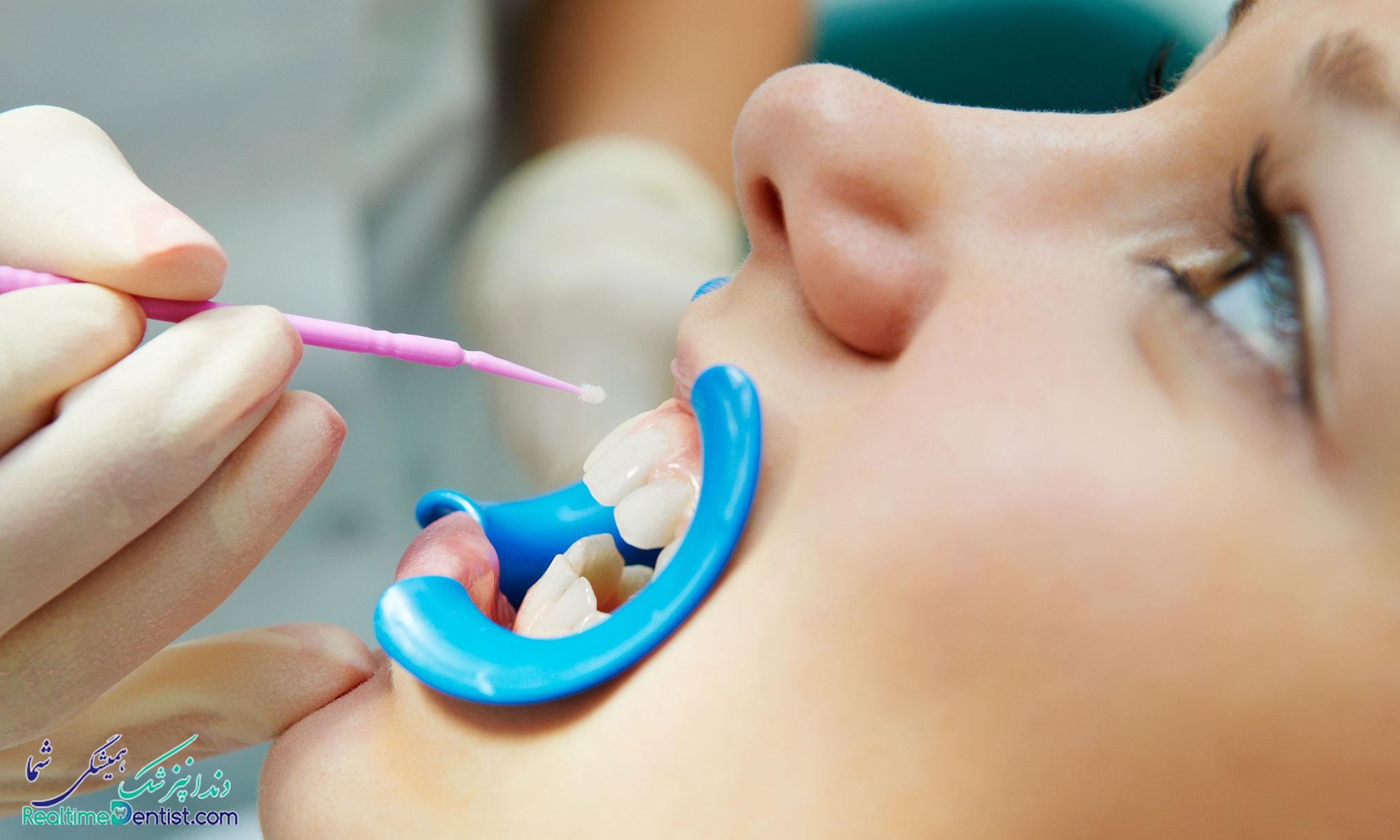 فلورایدتراپی دندان در بوشهر
