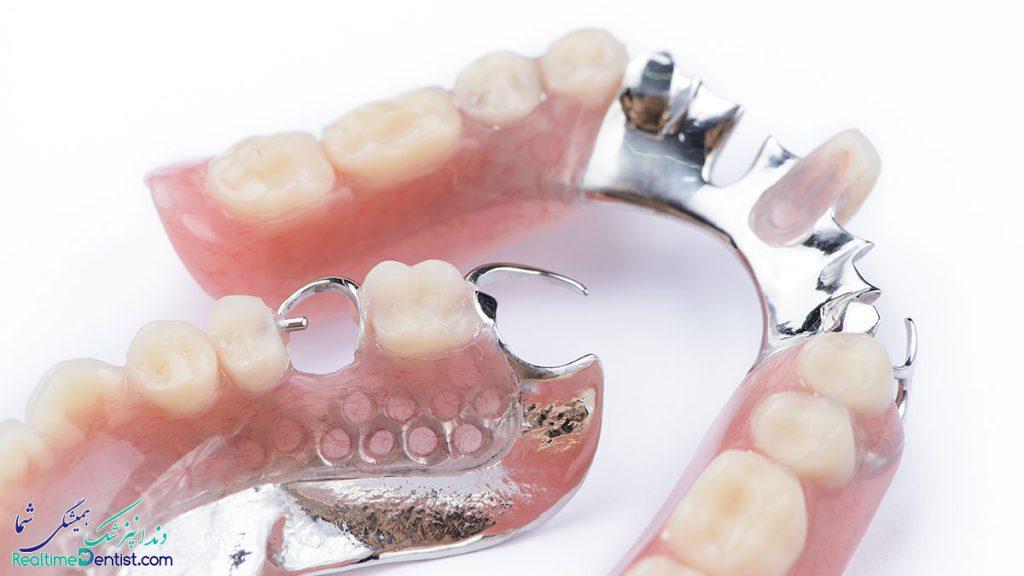 پروتز دندان در بوشهر