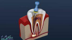 دندانپزشک متخصص درمان ریشه در بوشهر