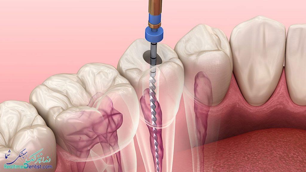 عصب کشی دندان در بوشهر