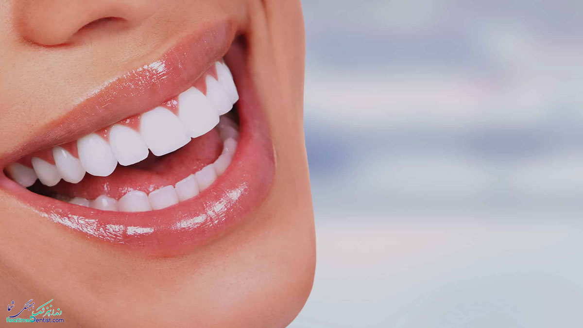 دندانپزشک زیبایی در بوشهر