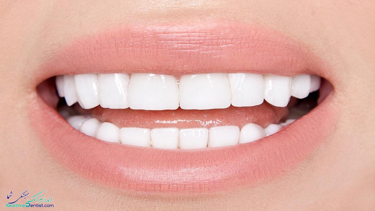 فیسینگ دندان در بندرعباس
