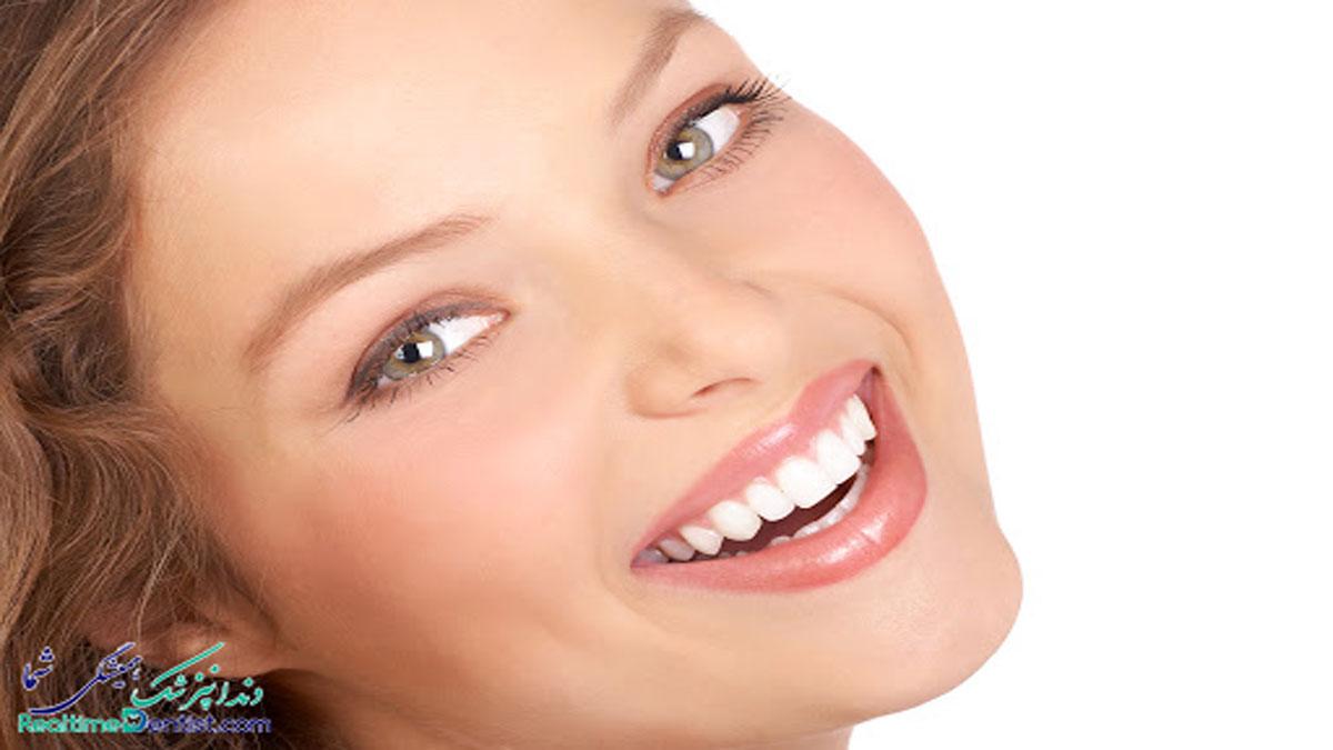 فیسینگ دندان در اهواز