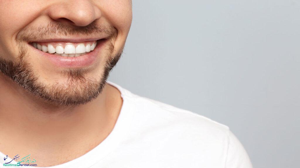 فیسینگ دندان در کرمان