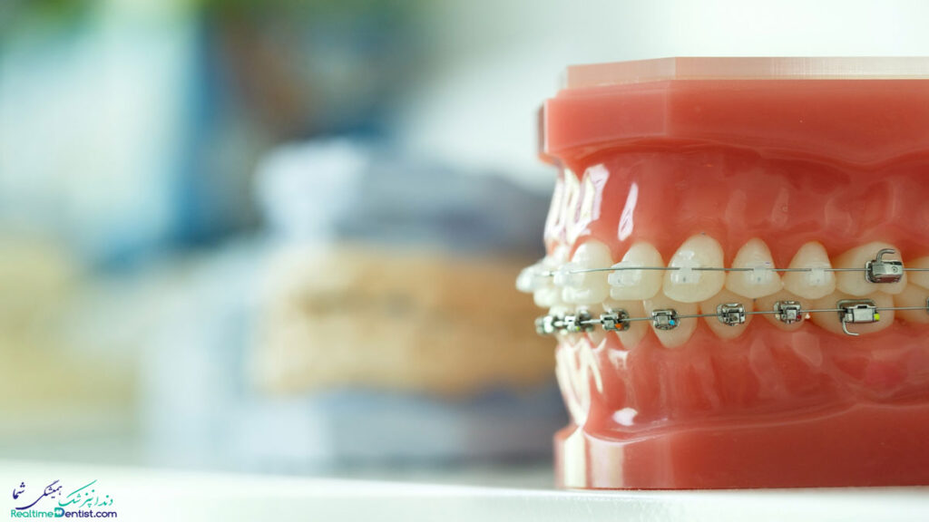 ارتودنسی دندان در بندرعباس