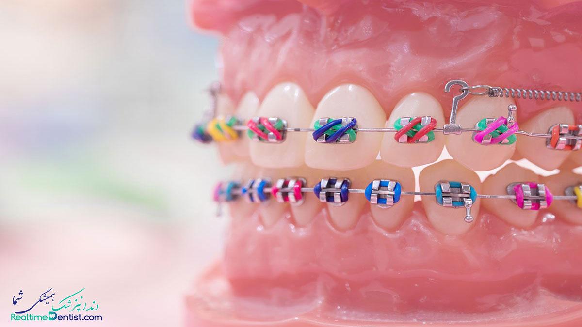 ارتودنسی دندان در اهواز
