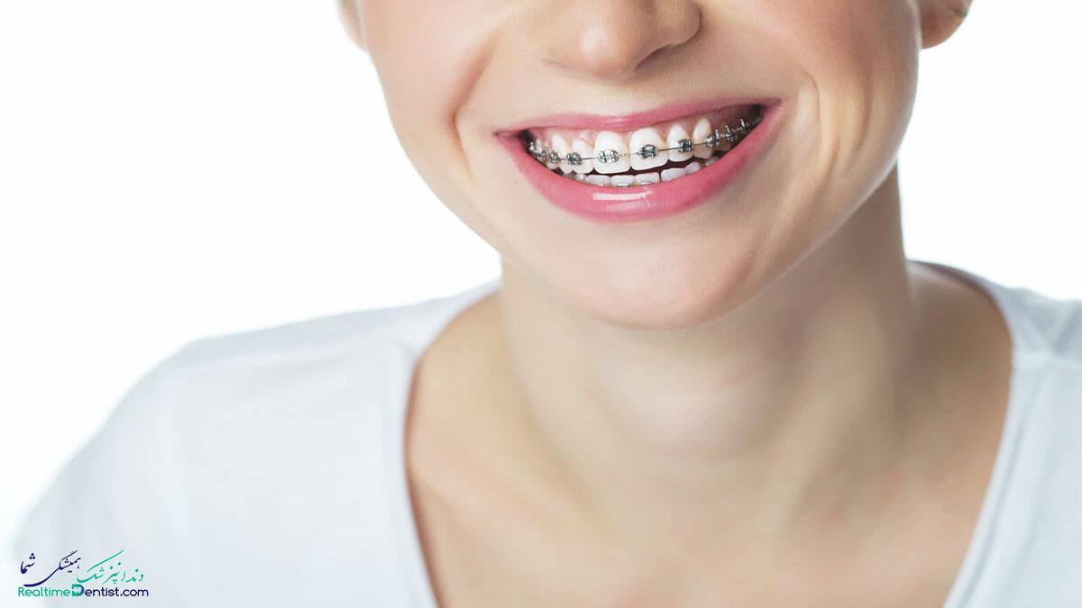 ارتودنسی دندان در کرمان