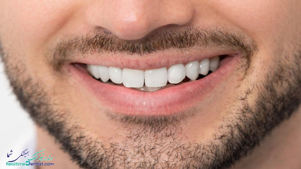 بلیچینگ دندان در کرمان