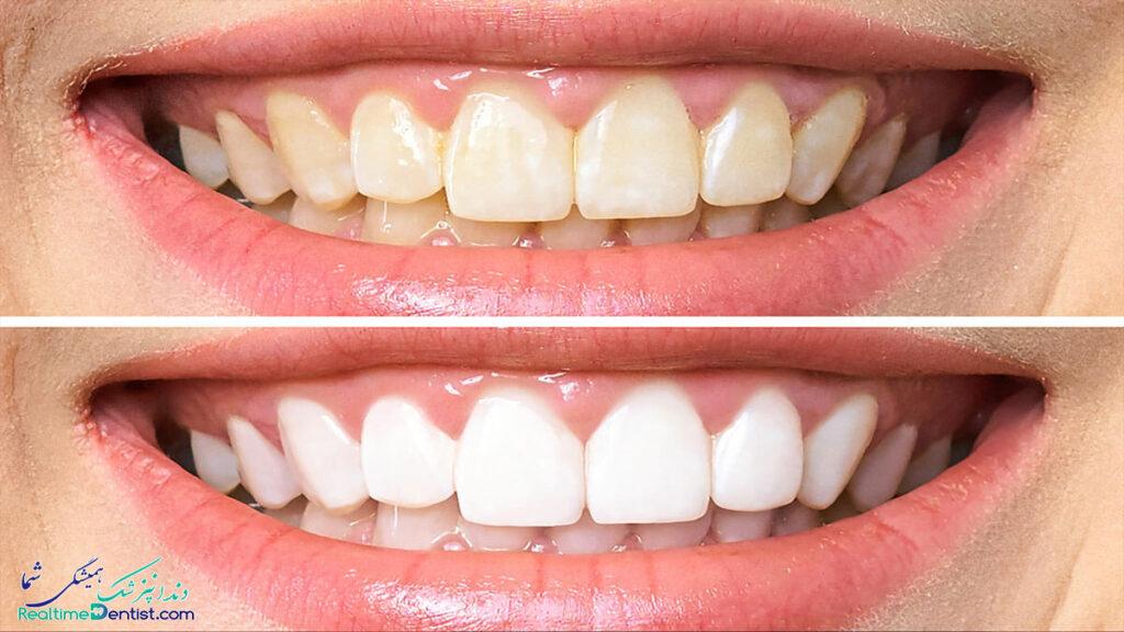 بلیچینگ دندان در اهواز