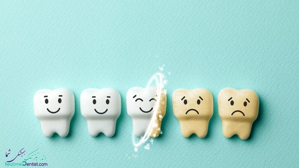 بلیچینگ دندان در یاسوج
