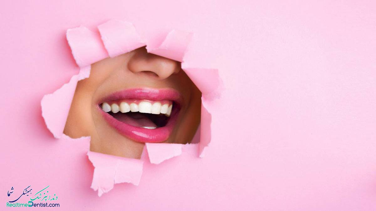 بلیچینگ دندان در بندرعباس