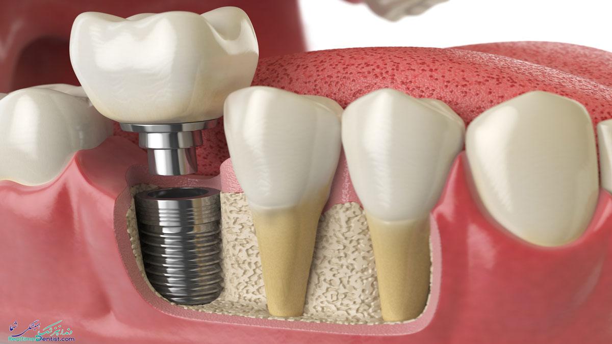 دندانپزشک متخصص ایمپلنت دندان در یاسوج
