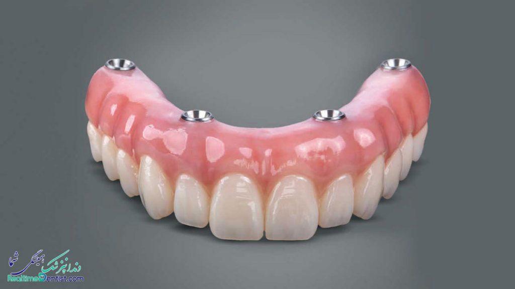 دندانپزشک متخصص ایمپلنت دندان در اهواز