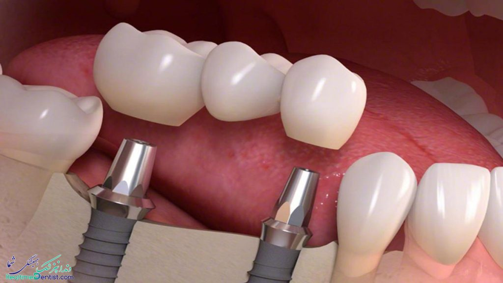 دندانپزشک متخصص ایمپلنت دندان در کرمان