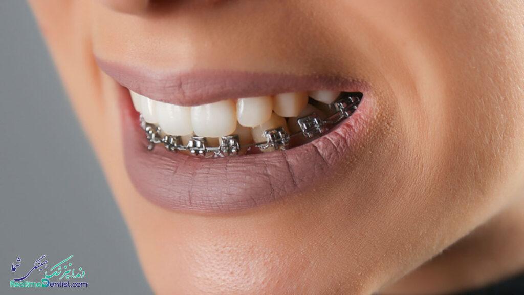 ارتودنسی دندان در رشت
