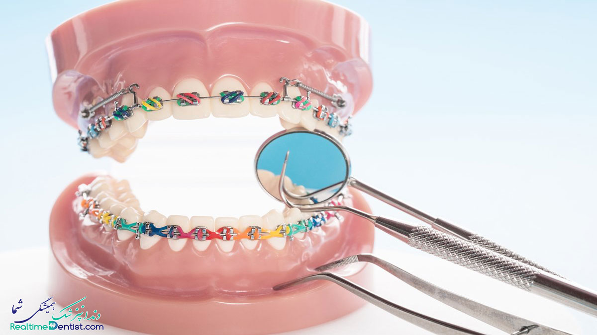 ارتودنسی دندان در یاسوج