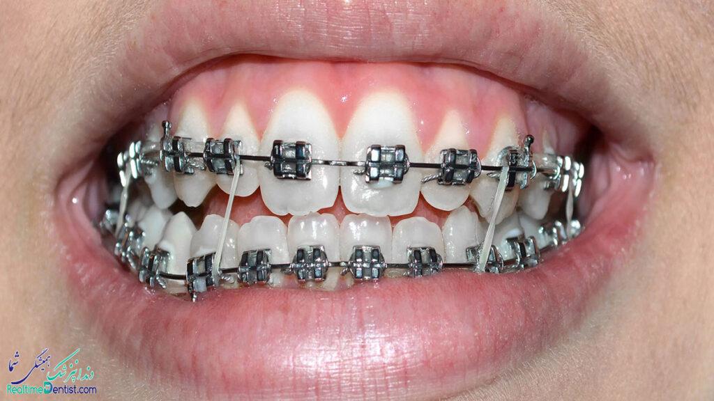 ارتودنسی دندان در اصفهان