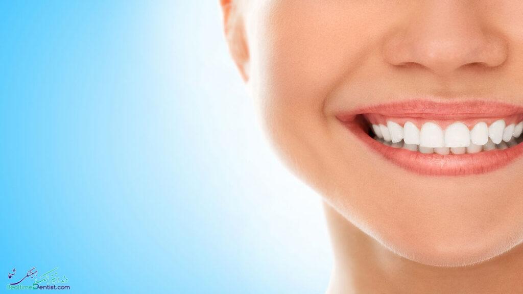 فیسینگ دندان در رشت