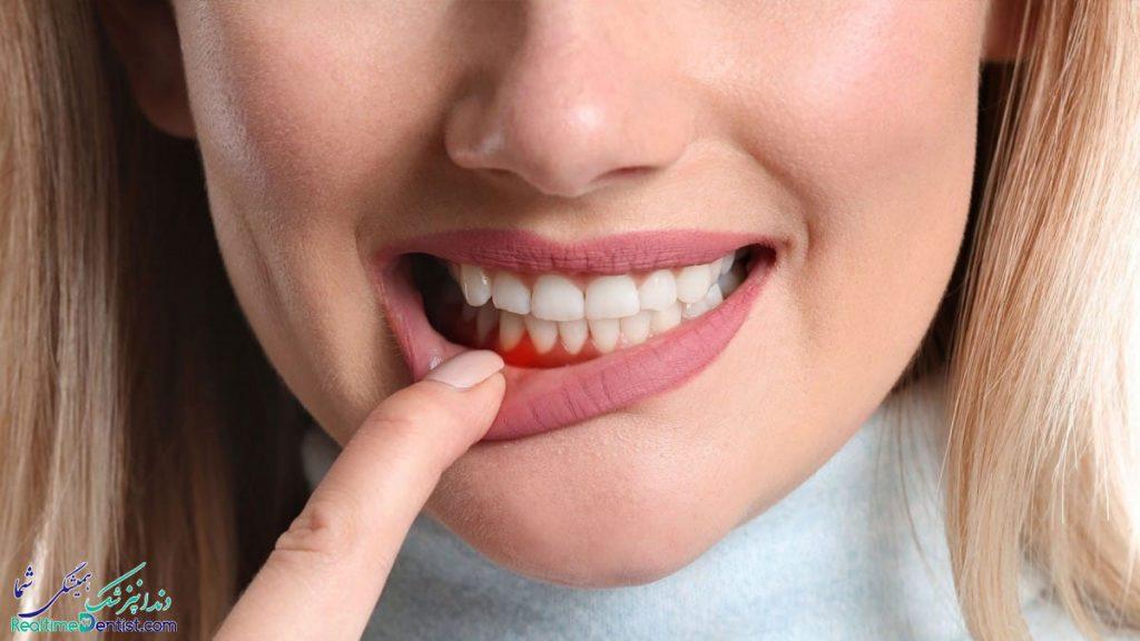 دندانپزشک متخصص جراحی لثه در اهواز
