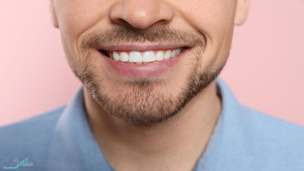 کامپوزیت دندان در بندرعباس