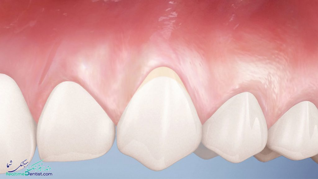 دندانپزشک متخصص درمان ریشه در یاسوج