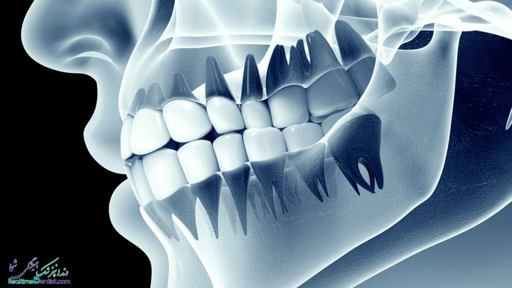 دندانپزشک متخصص درمان ریشه در بندرعباس