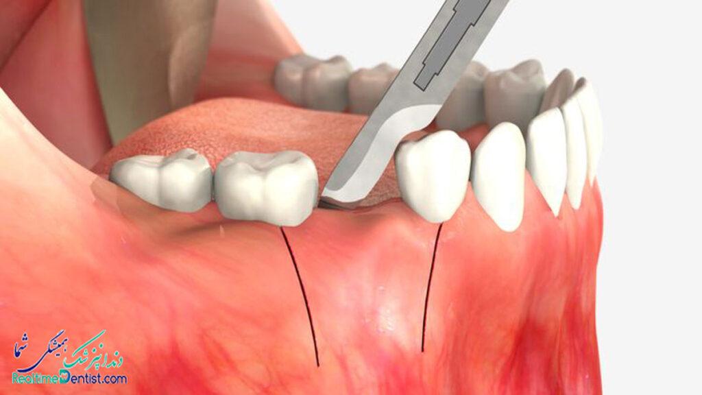 دندانپزشک متخصص جراحی لثه در رشت