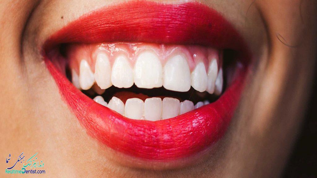 دندانپزشک متخصص جراحی لثه در یاسوج