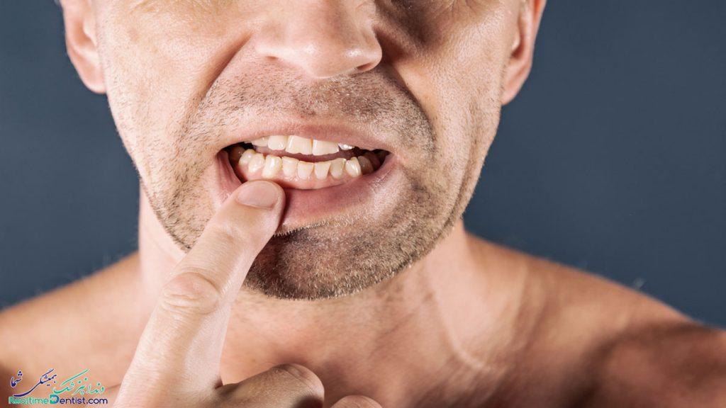 دندانپزشک متخصص جراحی لثه در کرمان