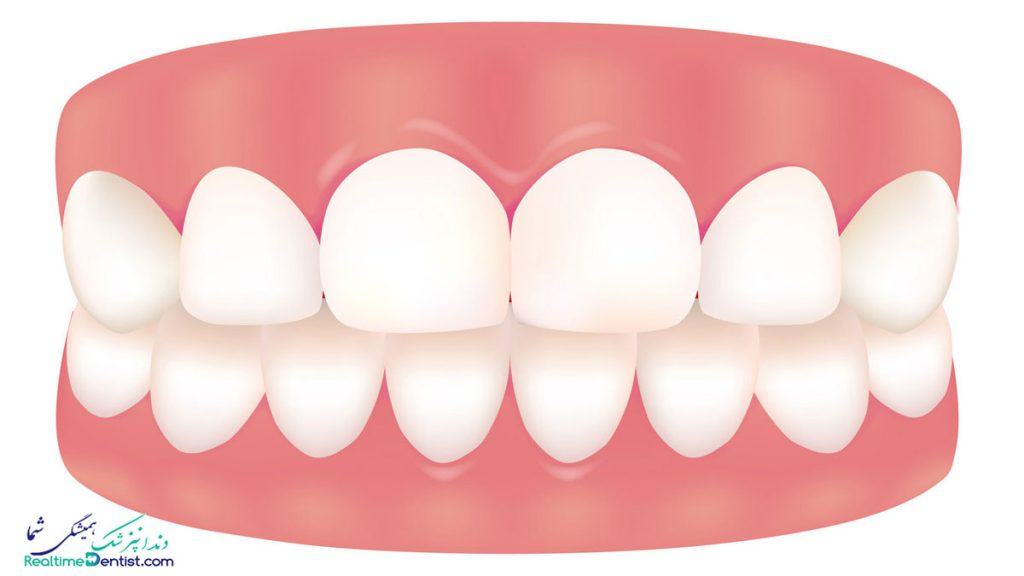دندانپزشک متخصص جراحی لثه در بندرعباس
